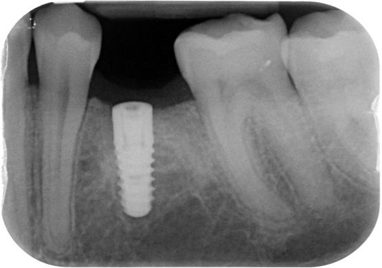 Implantat 35