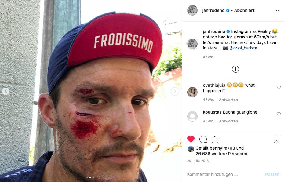 Trainingsunfall von Jan Frodeno. Quelle: Instagram-Profil Jan Frodeno